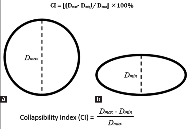 Figure 1: Schematic representation of venous collapsibility index computations
