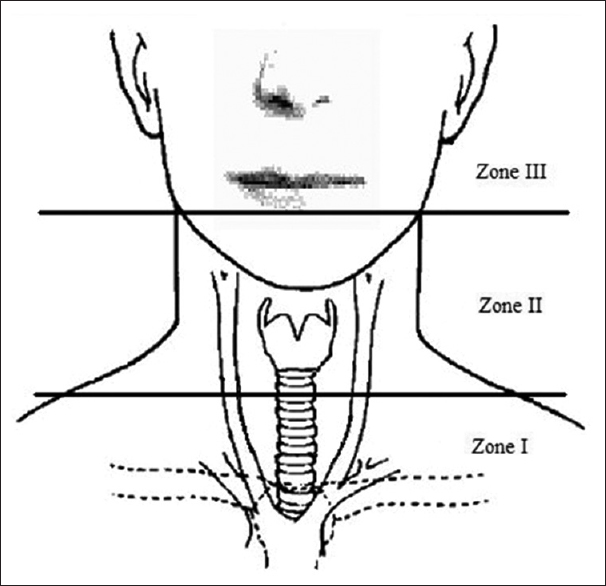 Figure 8: Schematic representation of the three zones of the neck