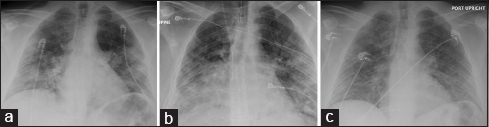 Figure 1: (a) Chest X-ray obtained at the time of initial hospitalization. (b) Chest X-ray obtained at the time of initiation of extra-corporeal membrane oxygenation. (c) Chest X-ray obtained 2 days before discharge home